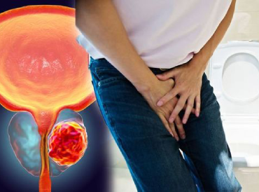 Prostate-cancer-symptoms-Urinations-holds-many-signs-and-warnings-of-deadly-condition-1222268